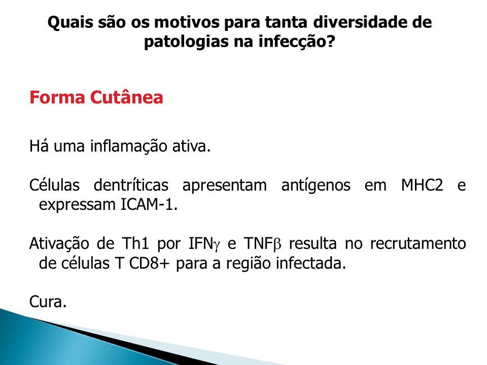 Há uma inflamação ativa. Células dentríticas apresentam antígenos em MHC2 e expressam ICAM-1. Ativação de Th1 por IFN e TNF resulta no recrutamento de