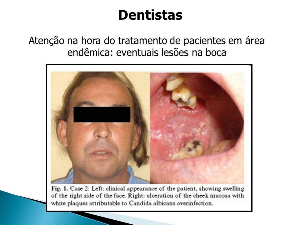 Dentistas Atenção na hora do tratamento de pacientes em área endêmica: eventuais lesões na boca