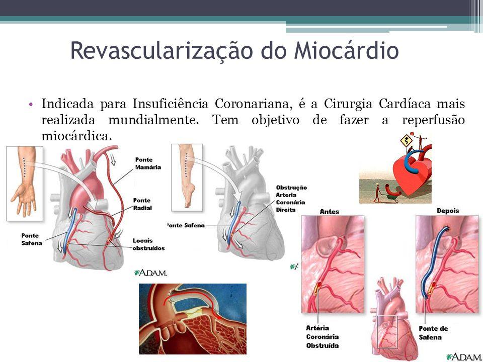 Revascularização do Miocárdio Indicada para Insuficiência Coronariana, é a Cirurgia Cardíaca mais realizada mundialmente. Tem objetivo de fazer a repe