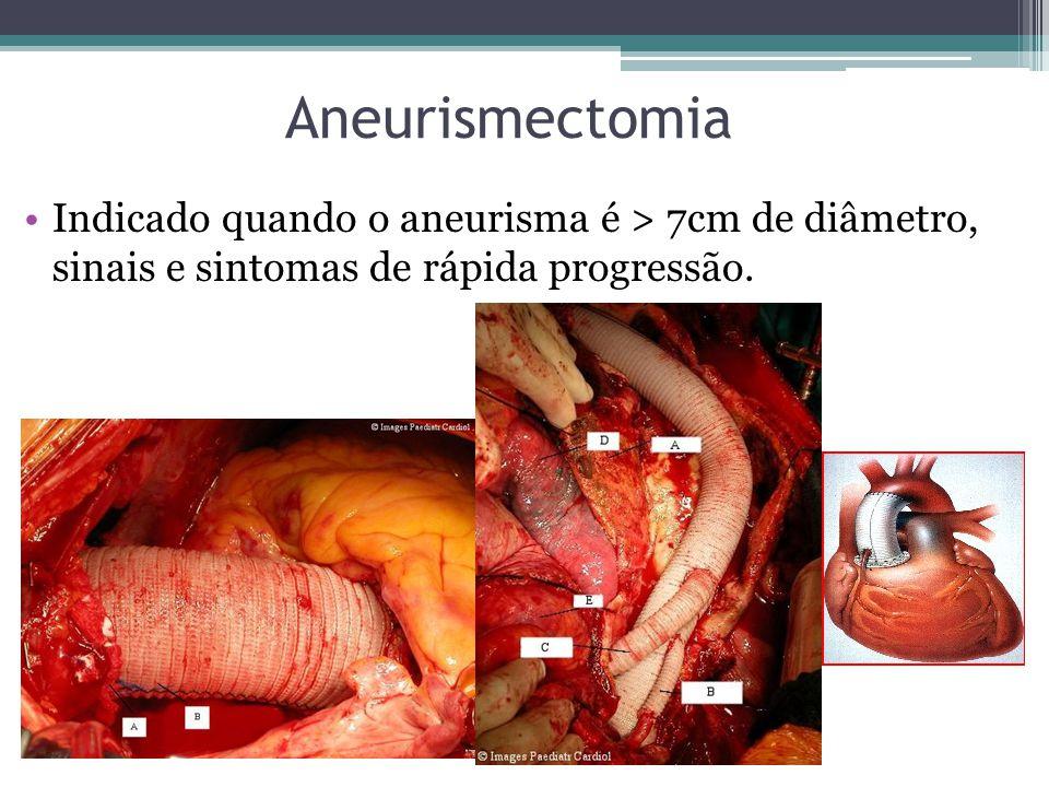 Aneurismectomia Indicado quando o aneurisma é > 7cm de diâmetro, sinais e sintomas de rápida progressão.