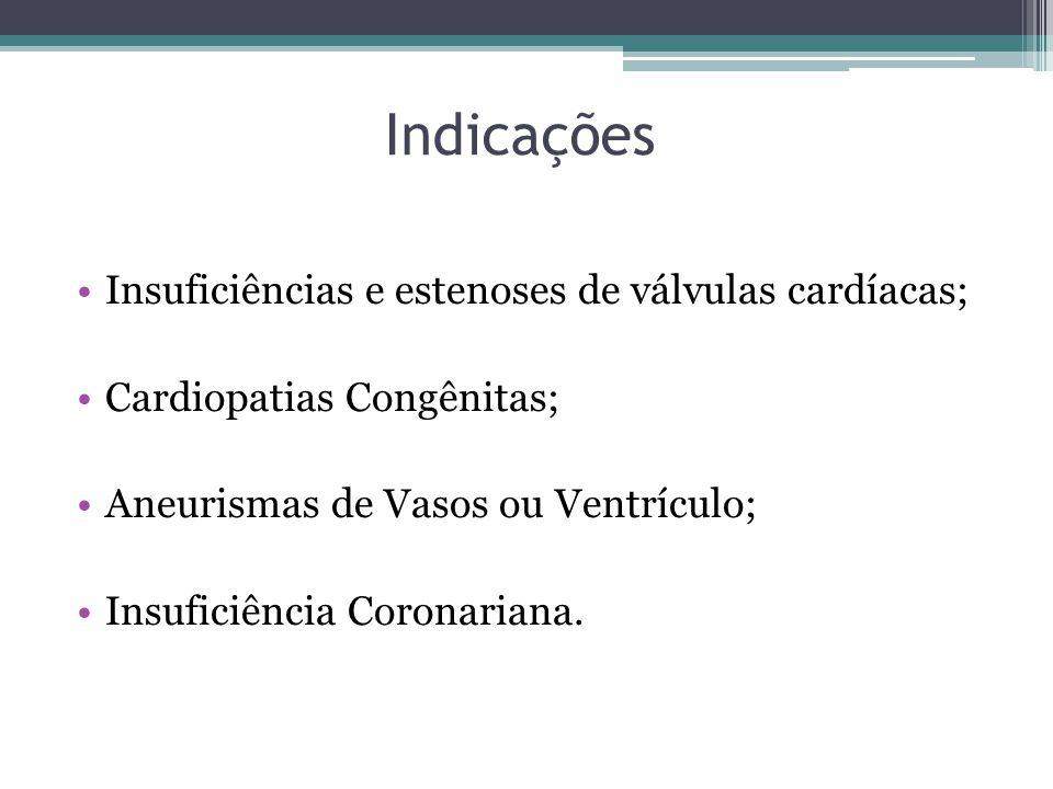 Indicações Insuficiências e estenoses de válvulas cardíacas; Cardiopatias Congênitas; Aneurismas de Vasos ou Ventrículo; Insuficiência Coronariana.