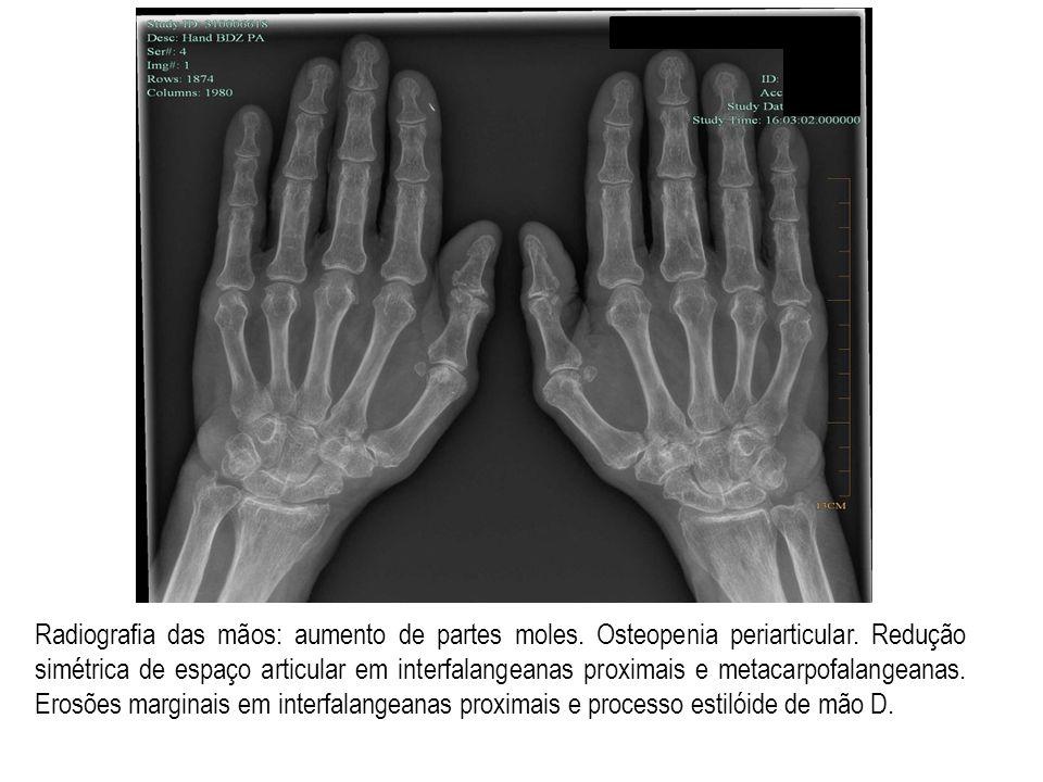 Radiografia das mãos: aumento de partes moles. Osteopenia periarticular. Redução simétrica de espaço articular em interfalangeanas proximais e metacar