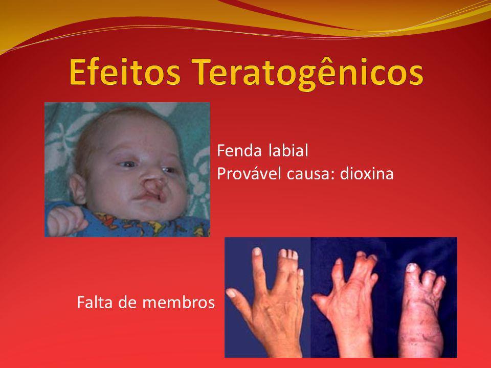 Fenda labial Provável causa: dioxina Falta de membros