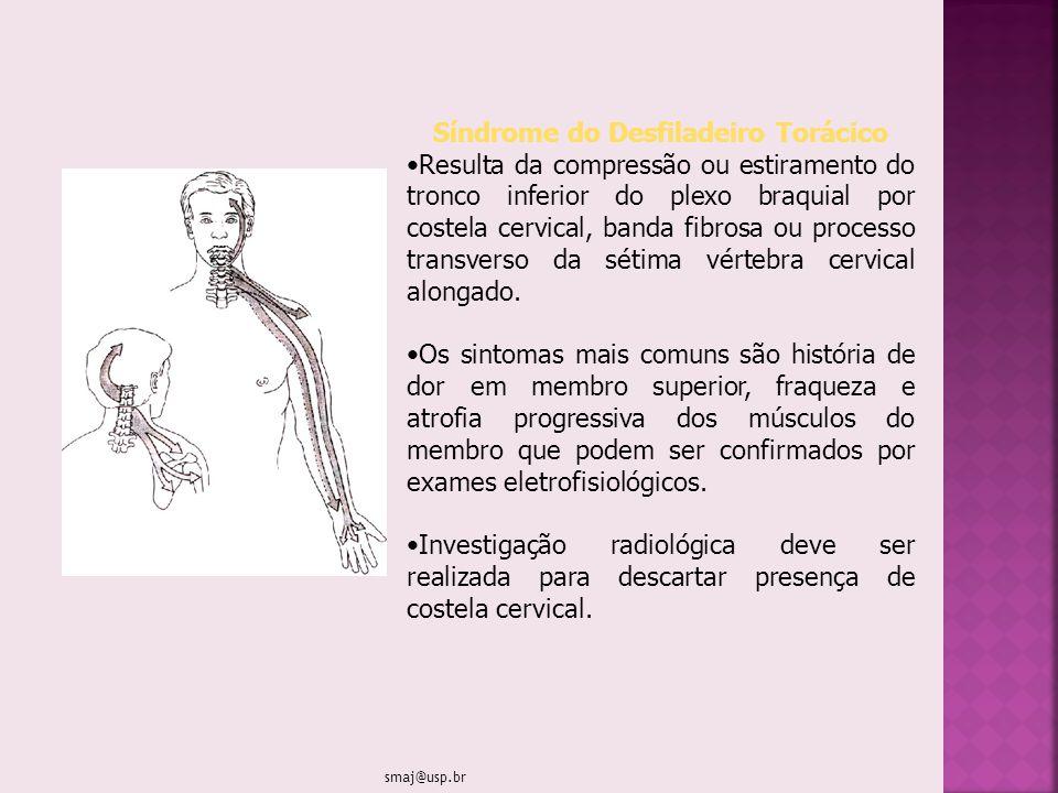 Síndrome do Desfiladeiro Torácico Resulta da compressão ou estiramento do tronco inferior do plexo braquial por costela cervical, banda fibrosa ou pro