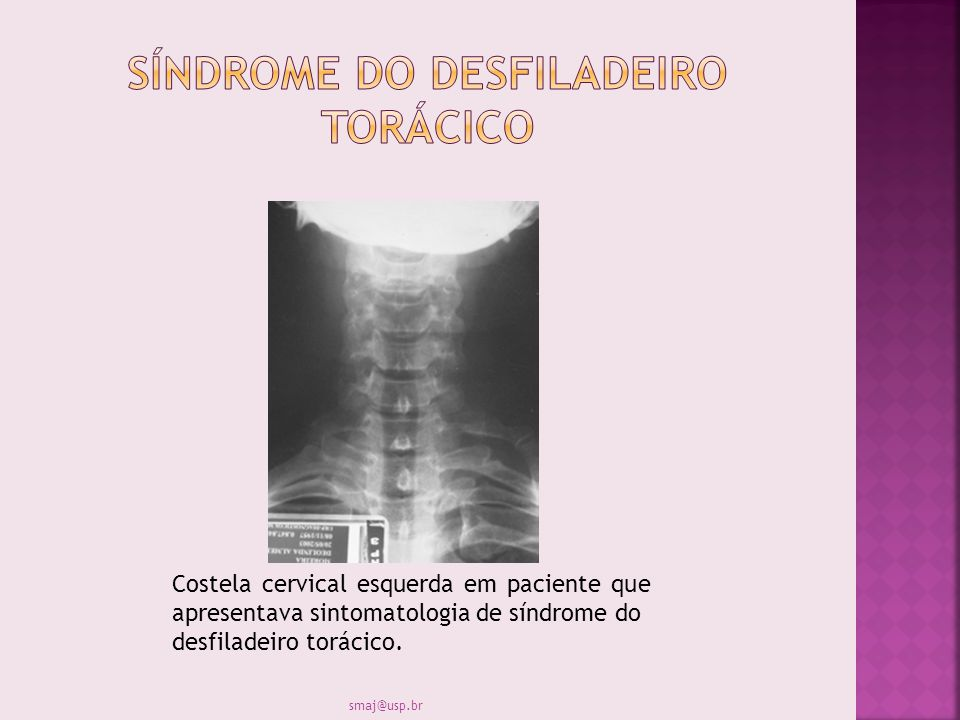 Costela cervical esquerda em paciente que apresentava sintomatologia de síndrome do desfiladeiro torácico. smaj@usp.br