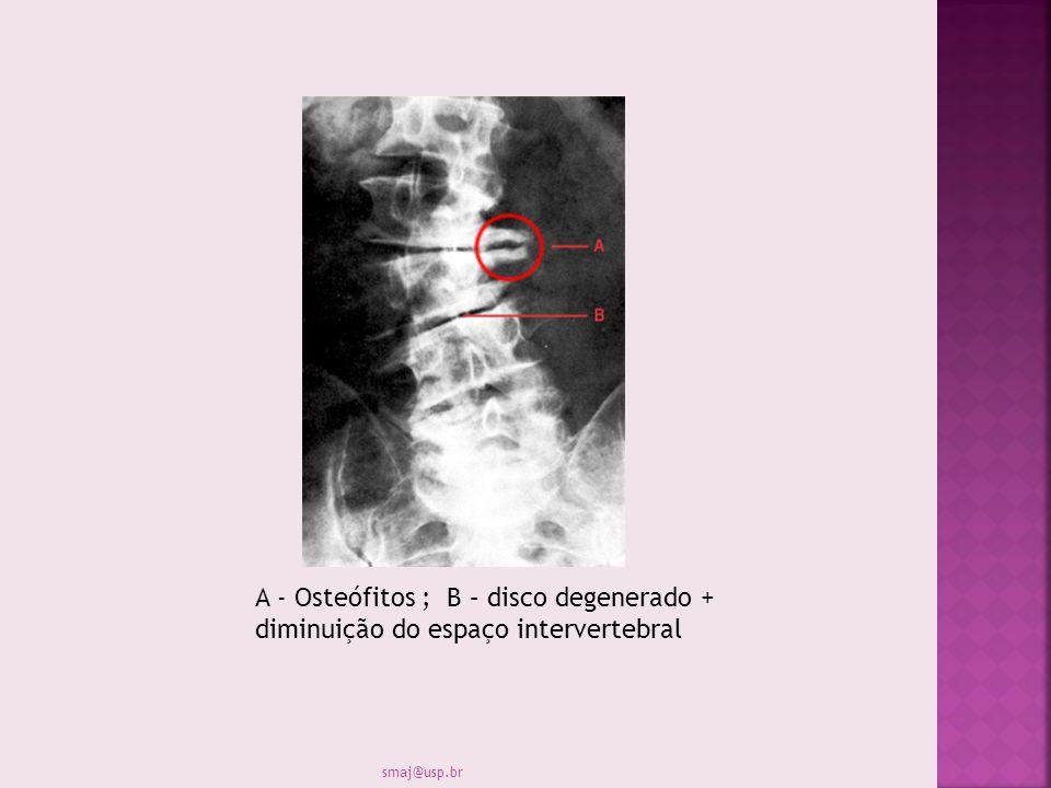 A - Osteófitos ; B – disco degenerado + diminuição do espaço intervertebral smaj@usp.br