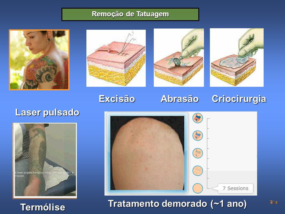 29 Excisão Remoção de Tatuagem AbrasãoCriocirurgia Laser pulsado Termólise Tratamento demorado (~1 ano)