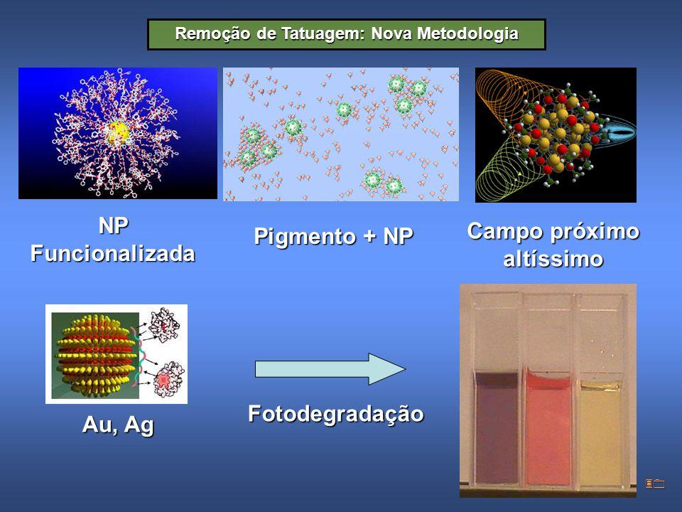 30 Remoção de Tatuagem: Nova Metodologia NP Funcionalizada Pigmento + NP Au, Ag Campo próximo altíssimo Fotodegradação
