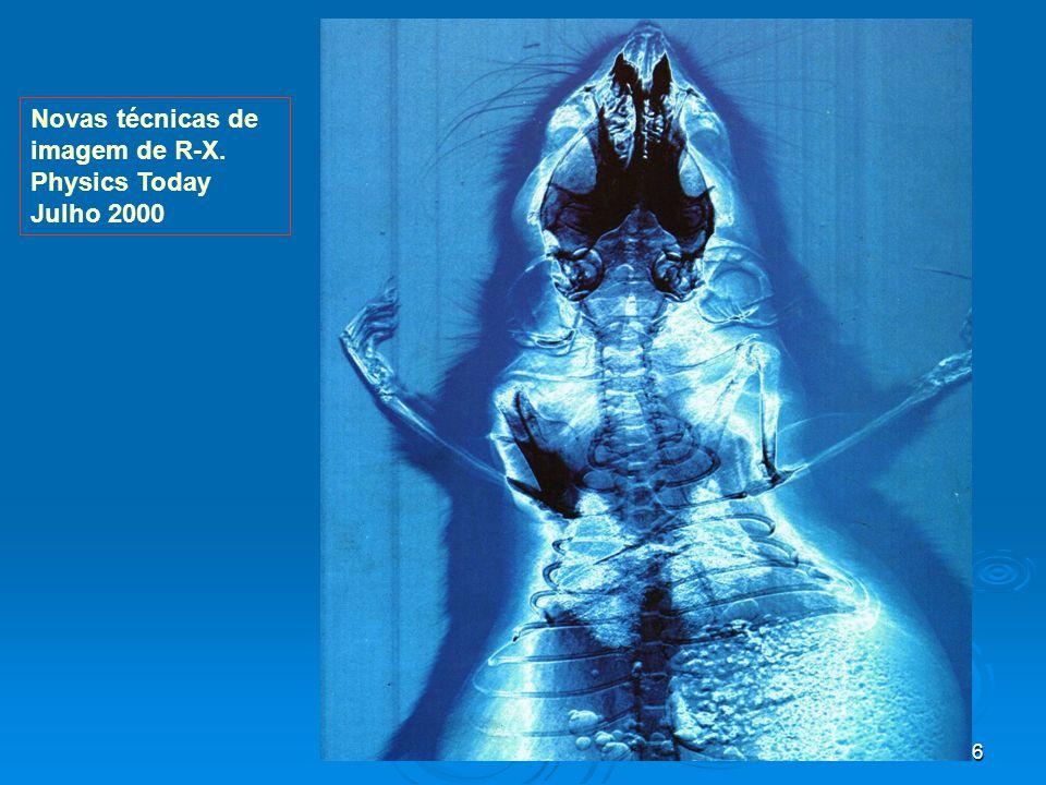 46 Novas técnicas de imagem de R-X. Physics Today Julho 2000