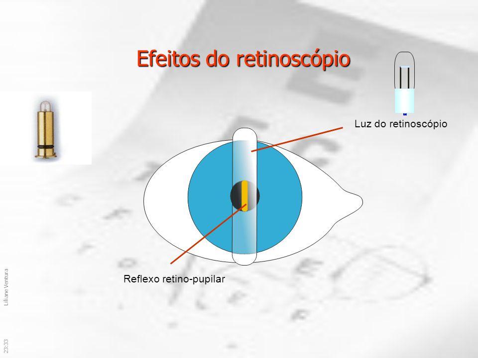 23:36Liliane Ventura Efeitos do retinoscópio Luz do retinoscópio Reflexo retino-pupilar