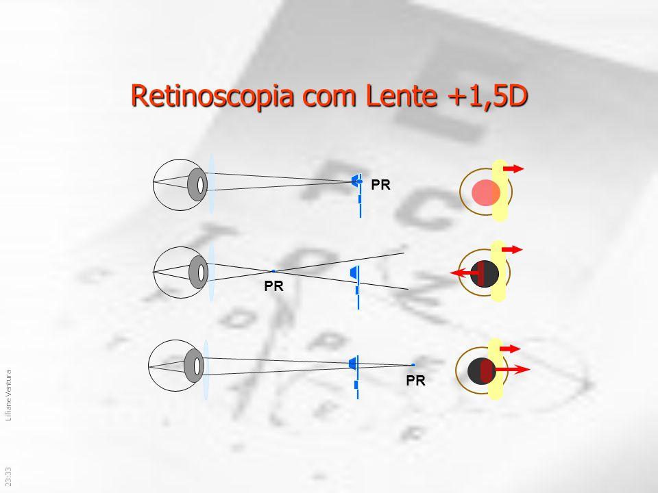 23:36Liliane Ventura Retinoscopia com Lente +1,5D PR