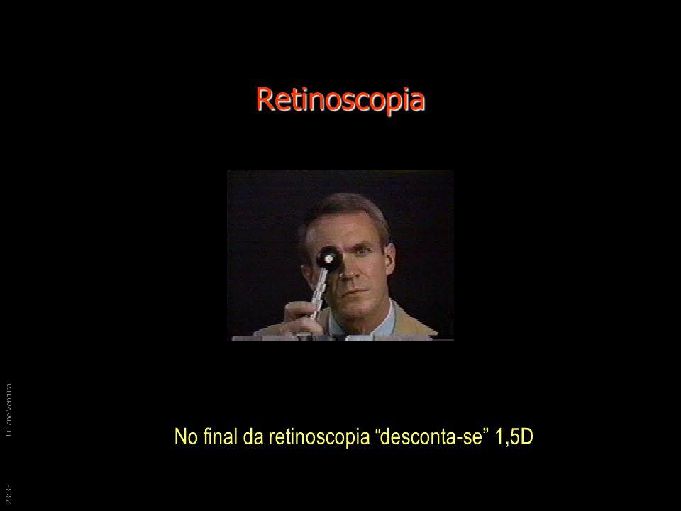 23:36Liliane Ventura Retinoscopia No final da retinoscopia desconta-se 1,5D
