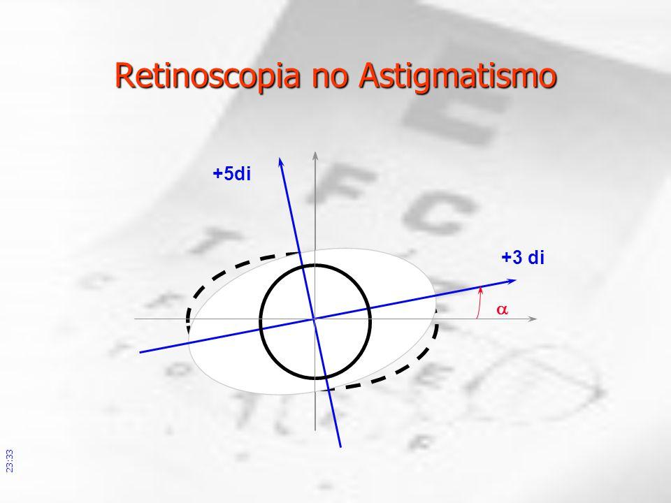 +3 di +5di Retinoscopia no Astigmatismo 23:36