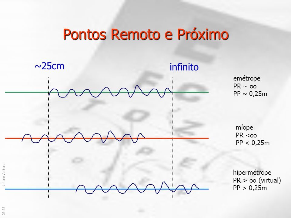 23:36Liliane Ventura Pontos Remoto e Próximo infinito ~25cm emétrope PR ~ oo PP ~ 0,25m míope PR <oo PP < 0,25m hipermétrope PR > oo (virtual) PP > 0,