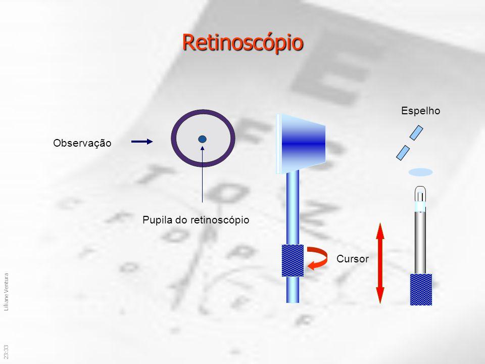 23:36Liliane Ventura Retinoscópio Cursor Observação Pupila do retinoscópio Espelho