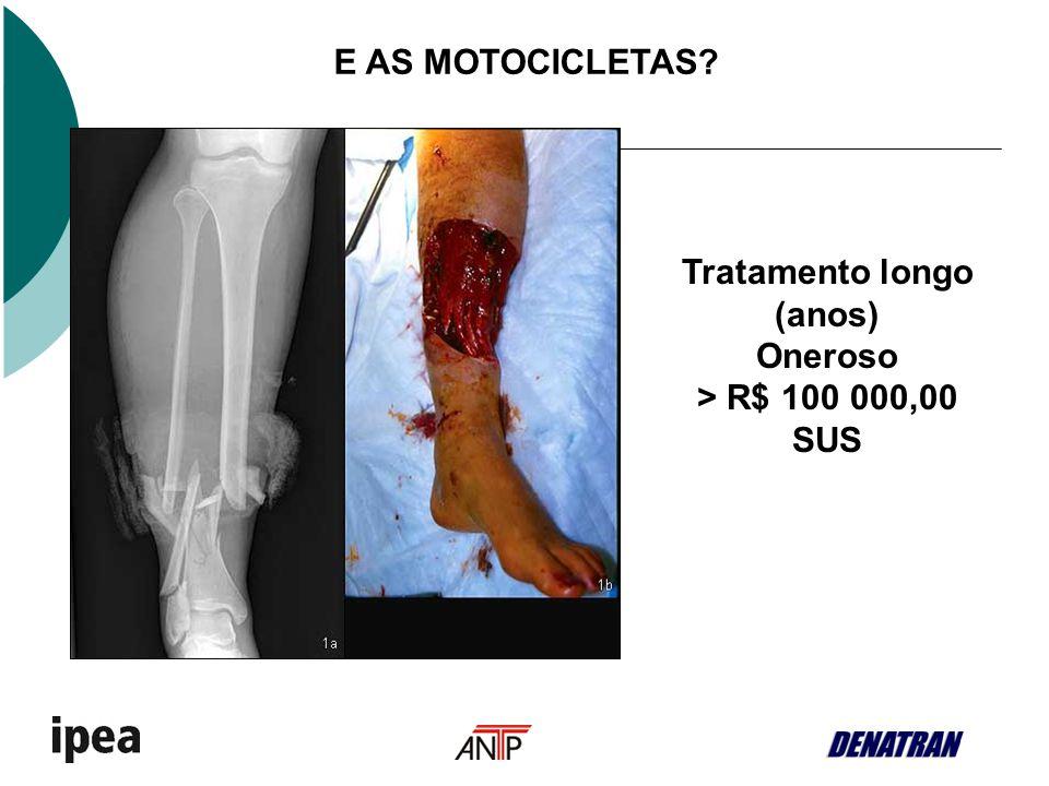 E AS MOTOCICLETAS? Tratamento longo (anos) Oneroso > R$ 100 000,00 SUS