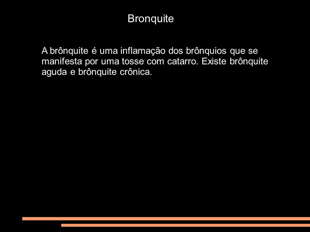 Bronquite A brônquite é uma inflamação dos brônquios que se manifesta por uma tosse com catarro. Existe brônquite aguda e brônquite crônica.