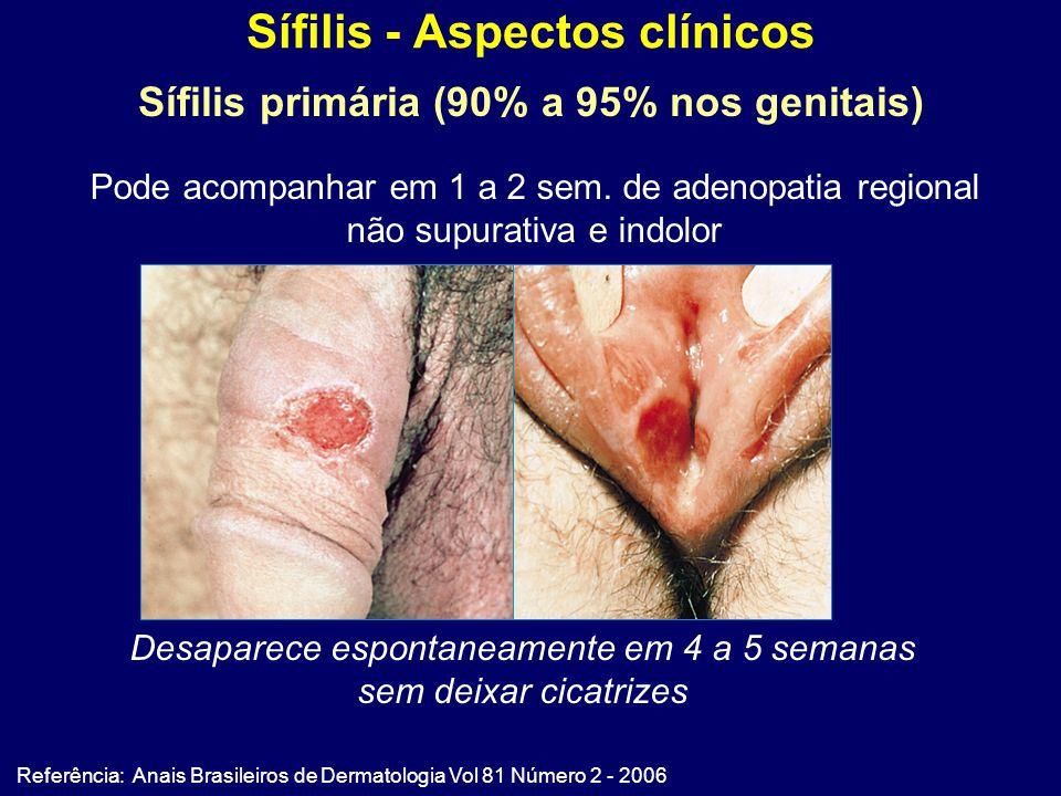 Sífilis - Aspectos clínicos Referência: Anais Brasileiros de Dermatologia Vol 81 Número 2 - 2006 Sífilis primária (90% a 95% nos genitais) Desaparece espontaneamente em 4 a 5 semanas sem deixar cicatrizes Pode acompanhar em 1 a 2 sem.