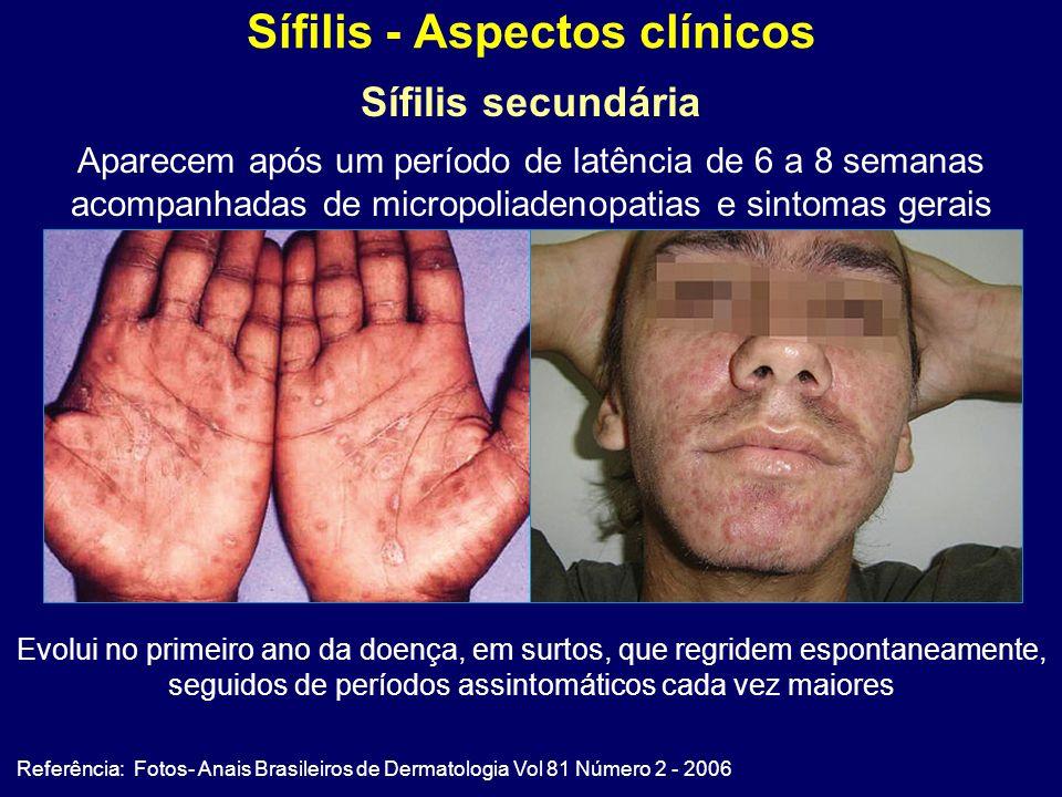 Sífilis - Aspectos clínicos Referência: Fotos- Anais Brasileiros de Dermatologia Vol 81 Número 2 - 2006 Sífilis secundária Aparecem após um período de latência de 6 a 8 semanas acompanhadas de micropoliadenopatias e sintomas gerais Evolui no primeiro ano da doença, em surtos, que regridem espontaneamente, seguidos de períodos assintomáticos cada vez maiores