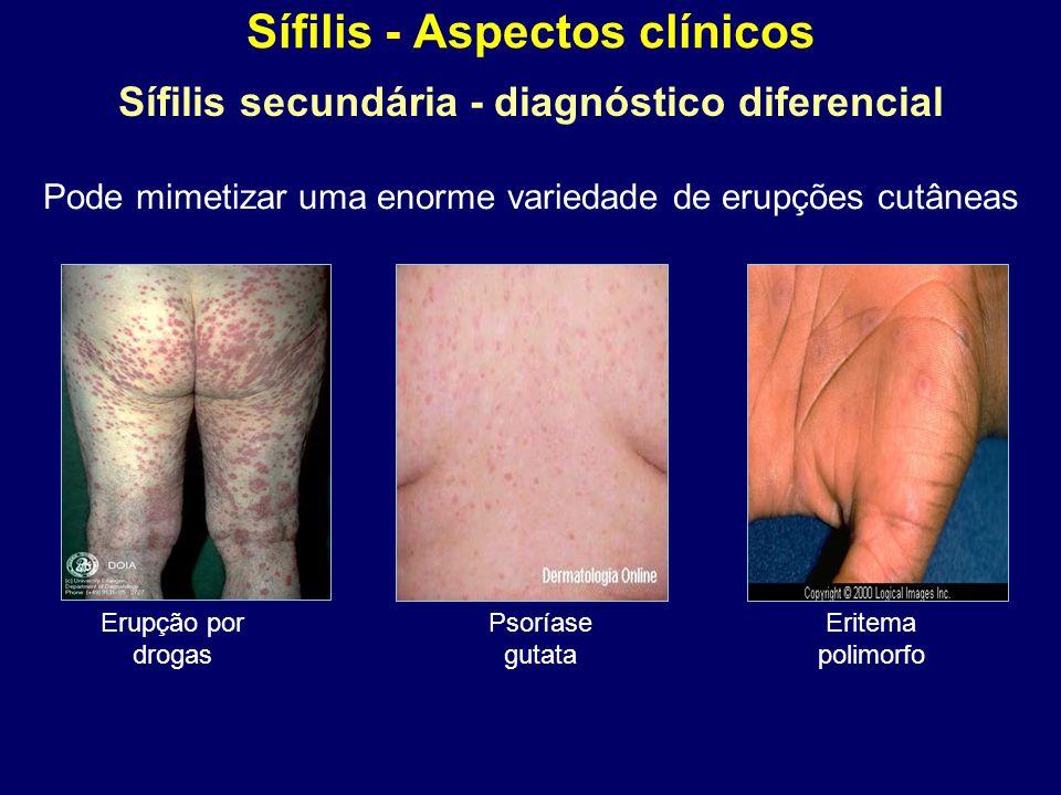 Sífilis - Aspectos clínicos Sífilis secundária - diagnóstico diferencial Pode mimetizar uma enorme variedade de erupções cutâneas Erupção por drogas Psoríase gutata Eritema polimorfo
