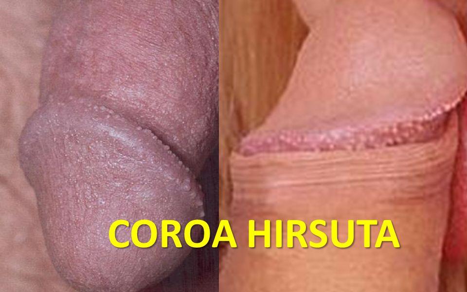 Coroa hirsutCoroa hirsuta a COROA HIRSUTA