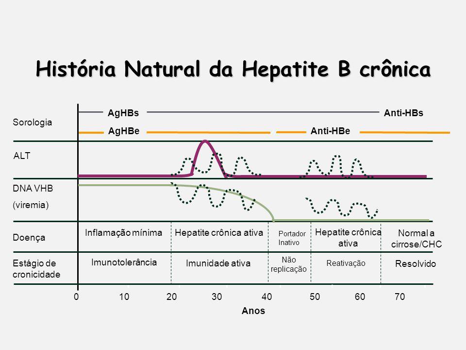 História Natural da Hepatite B crônica 0 10 20 30 40 50 60 70 Anos Sorologia AgHBeAnti-HBe ALT DNA VHB (viremia) Doença Hepatite crônica ativa Imunotolerância Imunidade ativa Estágio de cronicidade Inflamação mínima Resolvido Normal a cirrose/CHC AgHBsAnti-HBs Reativação Portador Inativo Não replicação