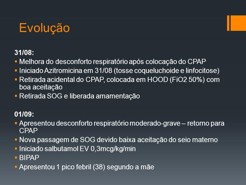 Evolução 31/08:  Melhora do desconforto respiratório após colocação do CPAP  Iniciado Azitromicina em 31/08 (tosse coqueluchoide e linfocitose)  Retirada acidental do CPAP, colocada em HOOD (FiO2 50%) com boa aceitação  Retirada SOG e liberada amamentação 01/09:  Apresentou desconforto respiratório moderado-grave – retorno para CPAP  Nova passagem de SOG devido baixa aceitação do seio materno  Iniciado salbutamol EV 0,3mcg/kg/min  BIPAP  Apresentou 1 pico febril (38) segundo a mãe