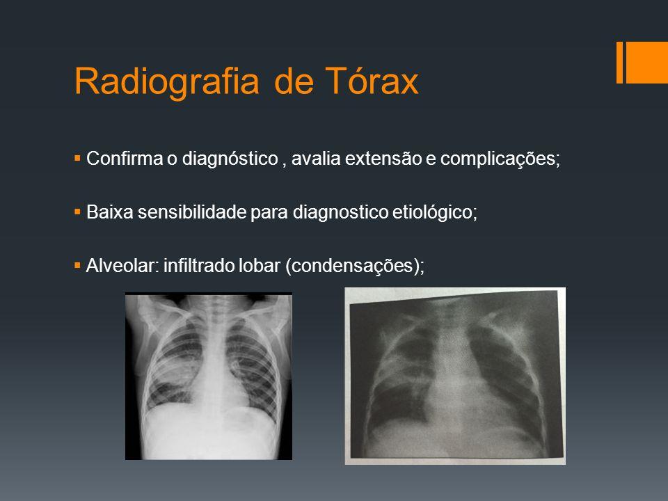 Radiografia de Tórax  Confirma o diagnóstico, avalia extensão e complicações;  Baixa sensibilidade para diagnostico etiológico;  Alveolar: infiltrado lobar (condensações);