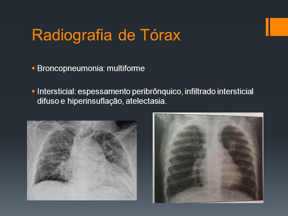 Radiografia de Tórax  Broncopneumonia: multiforme  Intersticial: espessamento peribrônquico, infiltrado intersticial difuso e hiperinsuflação, atelectasia.