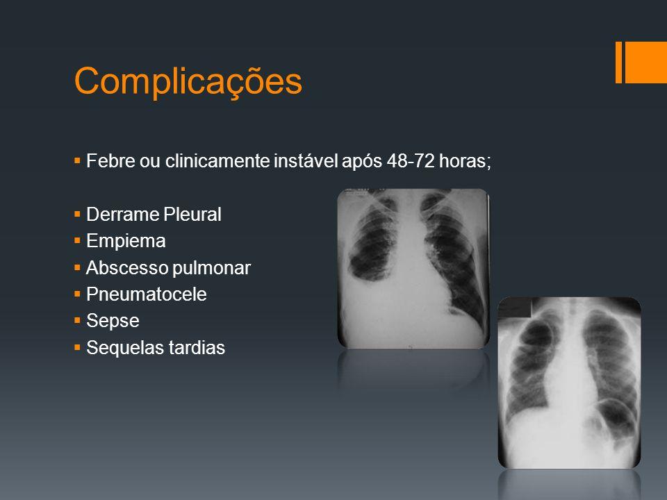 Complicações  Febre ou clinicamente instável após 48-72 horas;  Derrame Pleural  Empiema  Abscesso pulmonar  Pneumatocele  Sepse  Sequelas tardias