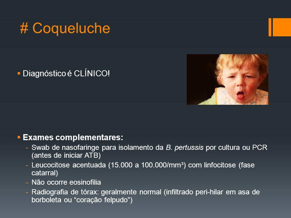 # Coqueluche  Diagnóstico é CLÍNICO.