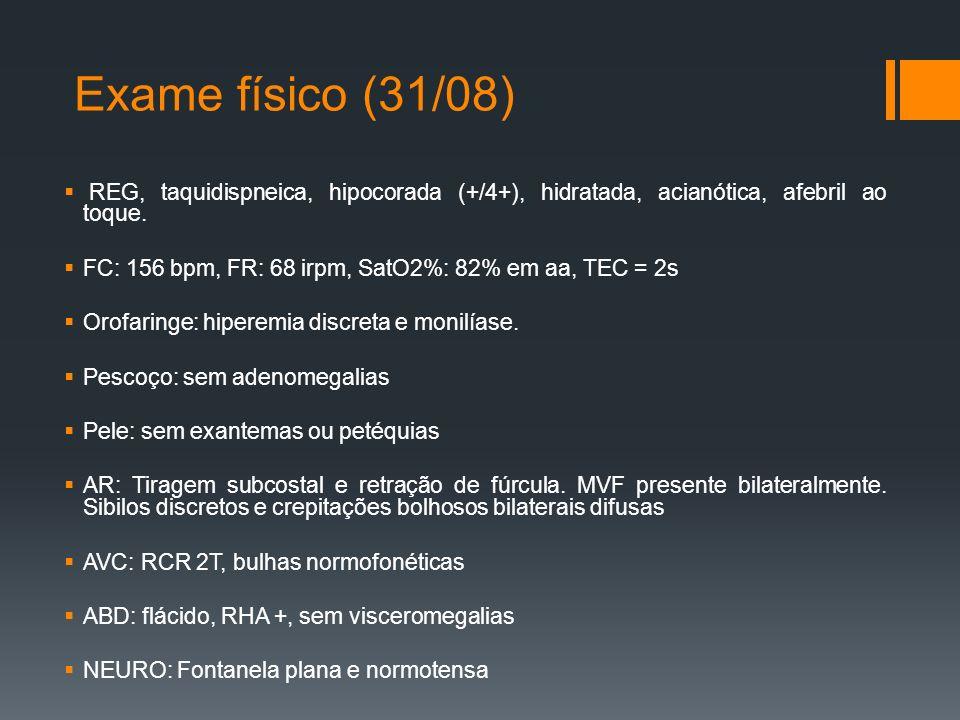 Exame físico (31/08)  REG, taquidispneica, hipocorada (+/4+), hidratada, acianótica, afebril ao toque.