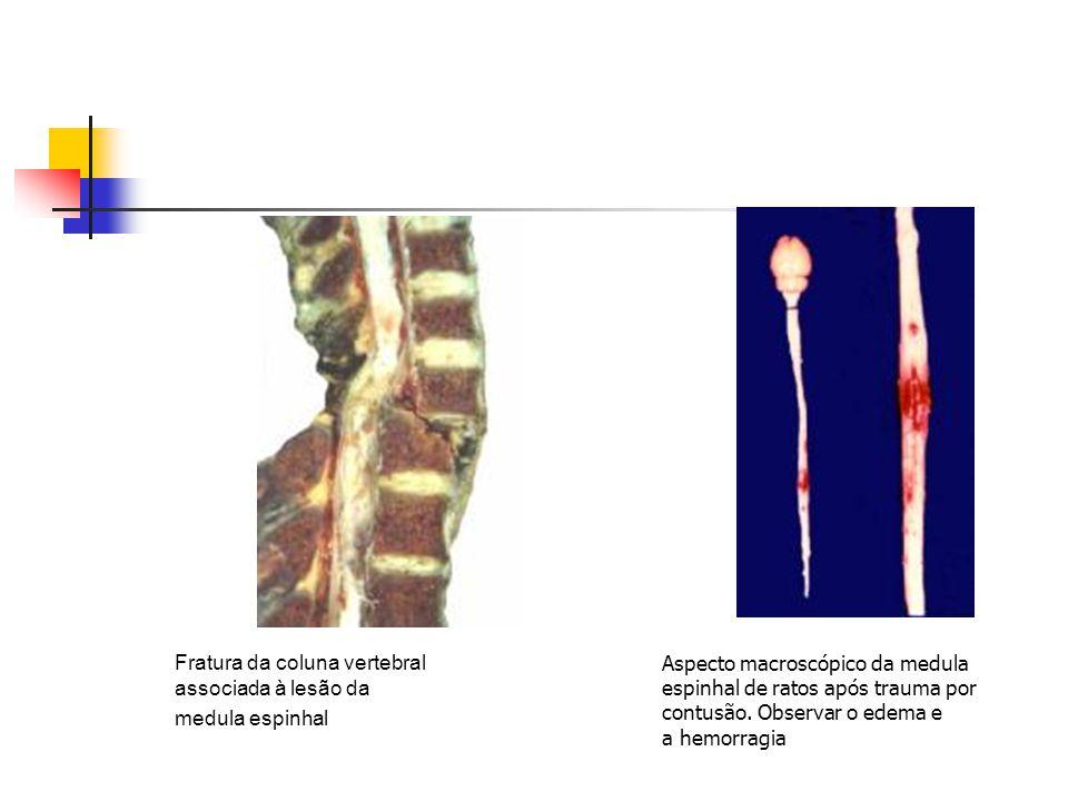 Fratura da coluna vertebral associada à lesão da medula espinhal Aspecto macroscópico da medula espinhal de ratos após trauma por contusão. Observar o