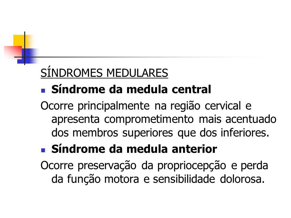 SÍNDROMES MEDULARES Síndrome da medula central Ocorre principalmente na região cervical e apresenta comprometimento mais acentuado dos membros superio