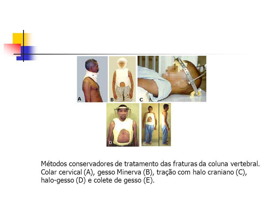 Métodos conservadores de tratamento das fraturas da coluna vertebral. Colar cervical (A), gesso Minerva (B), tração com halo craniano (C), halo-gesso