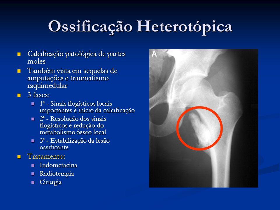 Ossificação Heterotópica Calcificação patológica de partes moles Calcificação patológica de partes moles Também vista em sequelas de amputações e trau