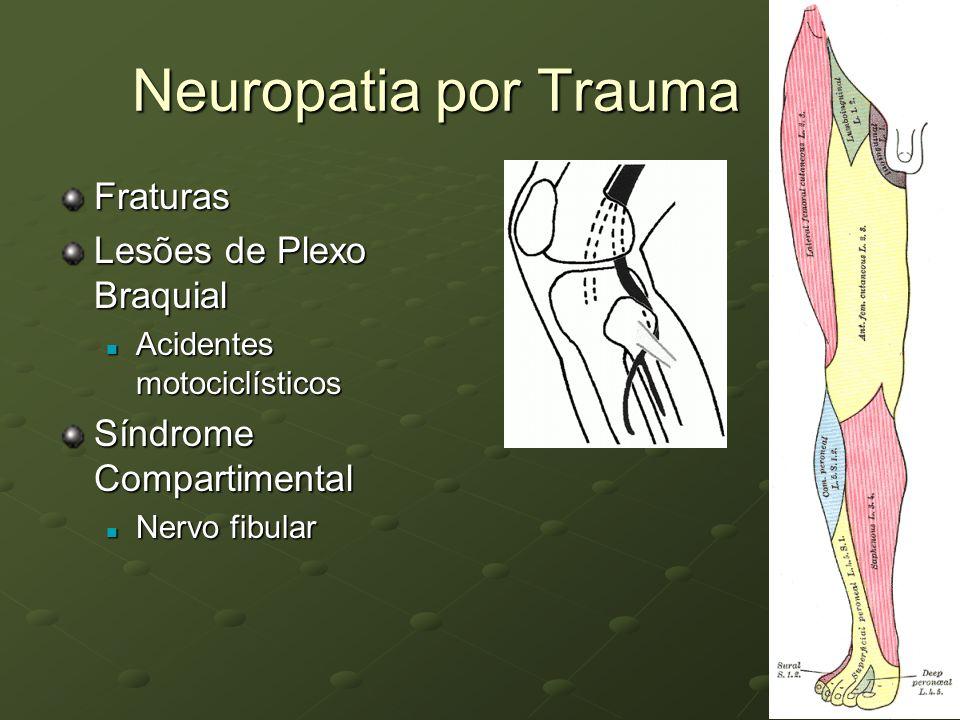 Neuropatia por Trauma Fraturas Lesões de Plexo Braquial Acidentes motociclísticos Acidentes motociclísticos Síndrome Compartimental Nervo fibular Nerv