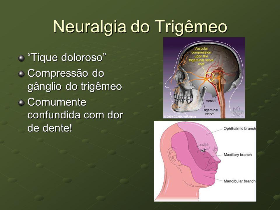 Neuralgia do Trigêmeo Tique doloroso Compressão do gânglio do trigêmeo Comumente confundida com dor de dente!