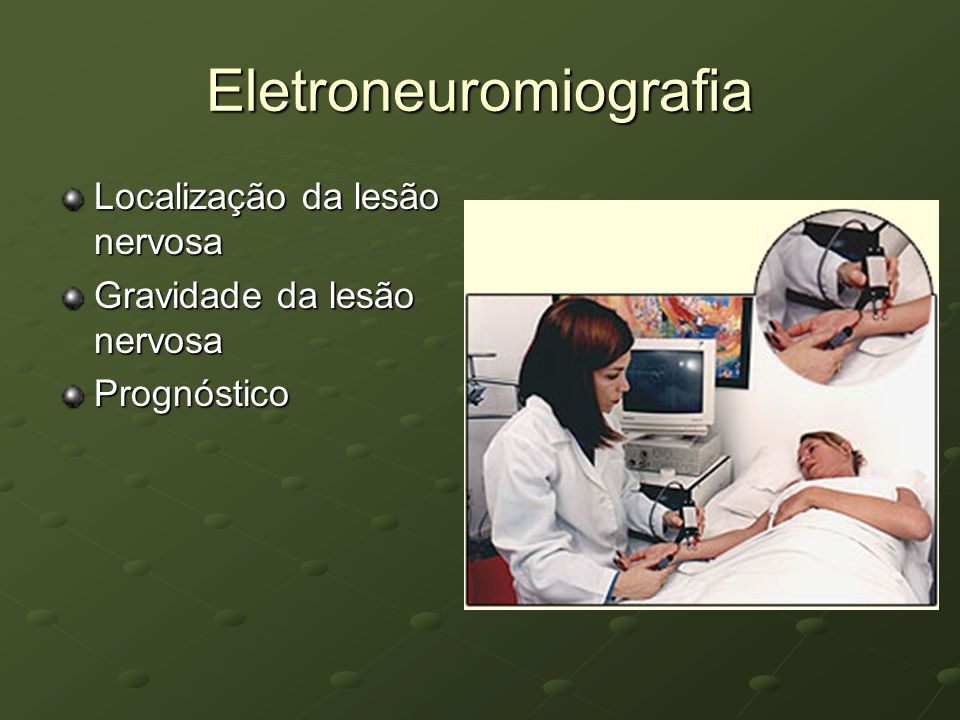 Eletroneuromiografia Localização da lesão nervosa Gravidade da lesão nervosa Prognóstico