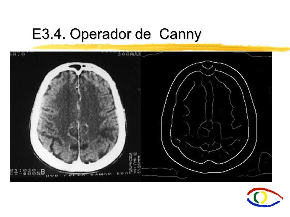 O detector de bordas de Canny é um filtro de convolução f que uniformiza o ruído e localiza as bordas.
