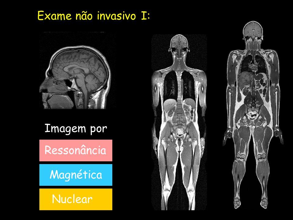 Exame não invasivo I: Ressonância Magnética Nuclear Imagem por