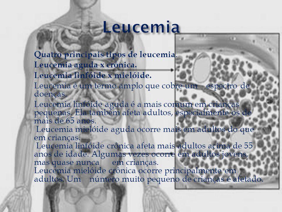 Quatro principais tipos de leucemia. Leucemia aguda x crônica. Leucemia linfóide x mielóide. Leucemia é um termo amplo que cobre um espectro de doença