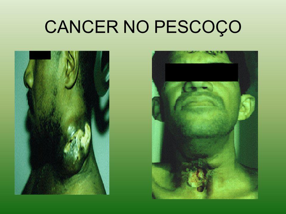CANCER NO PESCOÇO