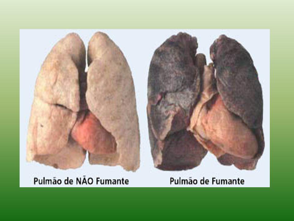 CANCER DE NARIZ, DE BOCA E LÍNGUA