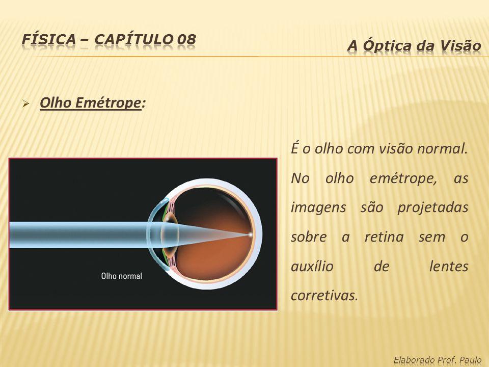 Olho Emétrope: É o olho com visão normal. No olho emétrope, as imagens são projetadas sobre a retina sem o auxílio de lentes corretivas.