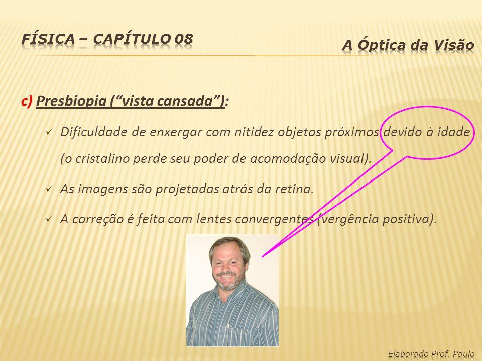 c) Presbiopia (vista cansada): Dificuldade de enxergar com nitidez objetos próximos devido à idade (o cristalino perde seu poder de acomodação visual).
