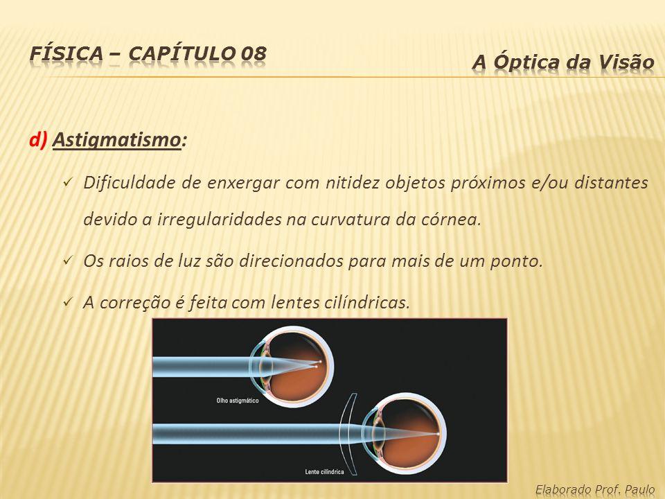 d) Astigmatismo: Dificuldade de enxergar com nitidez objetos próximos e/ou distantes devido a irregularidades na curvatura da córnea. Os raios de luz