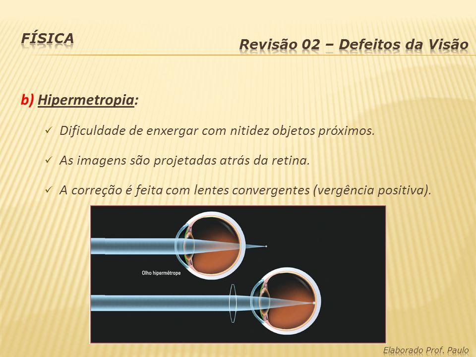b) Hipermetropia: Dificuldade de enxergar com nitidez objetos próximos. As imagens são projetadas atrás da retina. A correção é feita com lentes conve