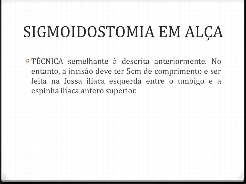 SIGMOIDOSTOMIA EM ALÇA 0 TÉCNICA semelhante à descrita anteriormente. No entanto, a incisão deve ter 5cm de comprimento e ser feita na fossa ilíaca es