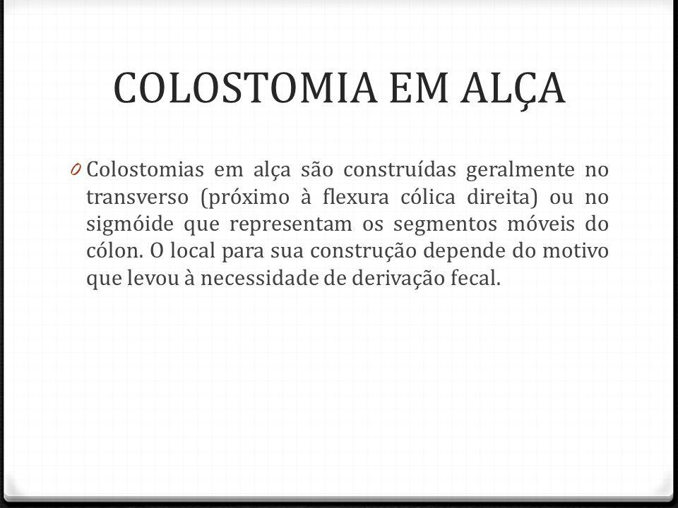 COLOSTOMIA EM ALÇA 0 Colostomias em alça são construídas geralmente no transverso (próximo à flexura cólica direita) ou no sigmóide que representam os